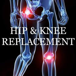 Hip & Knee Replacement  Clubhouse