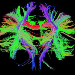 Noetic Neuroscience Clubhouse